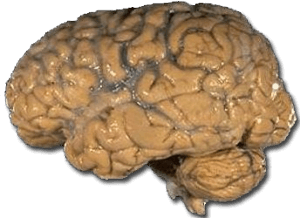 Quelle: http://commons.wikimedia.org/wiki/File:Human_brain_NIH.png